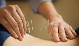 Apakah Akupuntur Bermanfaat