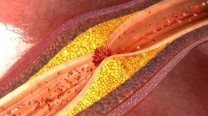 arti arteriosklerosis