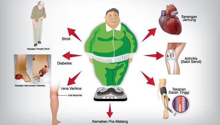 info menarik untuk orang obesitas